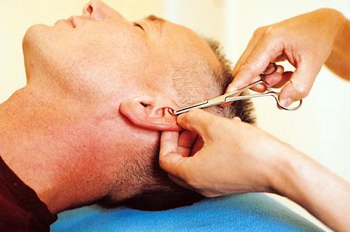 Ohr-Druck-Therapie